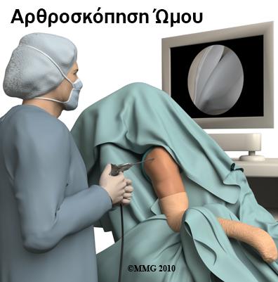 arthroskopisi-omou